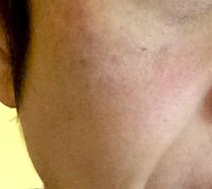 トリア1回目右頬赤み