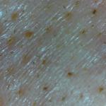 マイクロスコープ左小鼻day1
