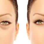 疲れて老けて見える目の下のふくらみ=目袋をなくしたい!