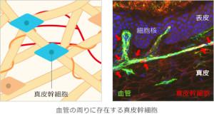 真皮幹細胞