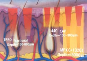 FRの皮膚深達度模式図