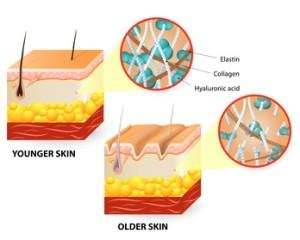 真皮のコラーゲンの減少