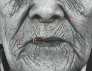 口唇周囲の老化現象