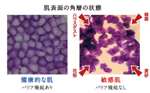 敏感肌と健康的な肌の角層状態の比較